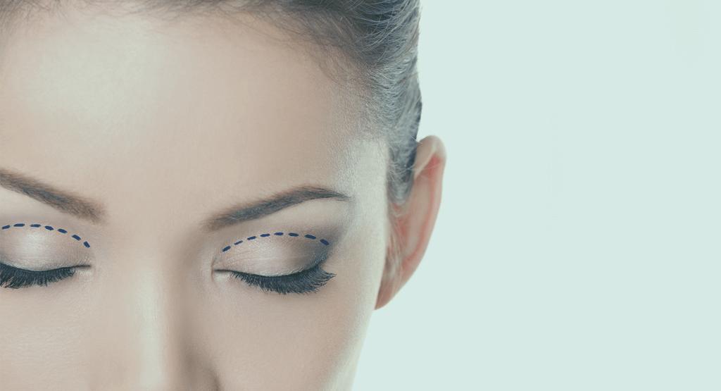 blefaroplastia-retirada-excesso-de-pele-nos-olhos
