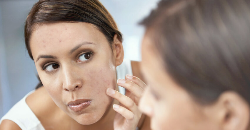 acne luciano schutz