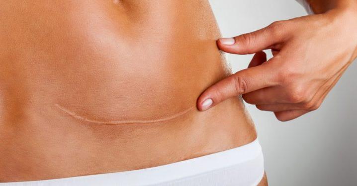 O risco de seroma na cirurgia plástica de  abdominoplastia pode ser evitadas por profissional