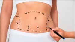Tudo sobre abdominoplastia para lactantes