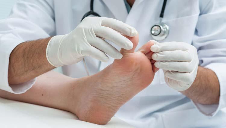 Como o tratamento Nanoskin na podologia pode ajudar em doenças graves